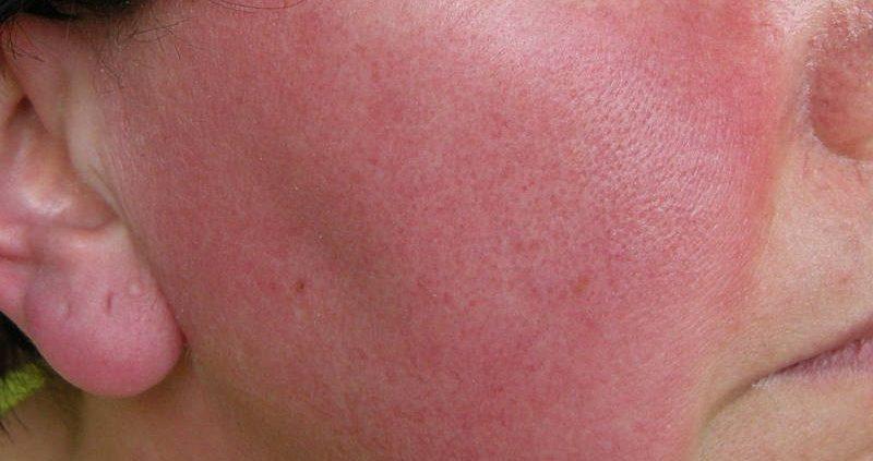 Rosácea: saiba as causas e tratamentos 1